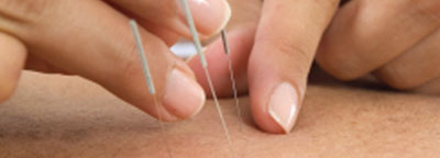 Acupuncture-ss